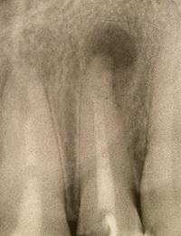 Киста над зубом лечение