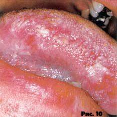Рис.10. Волосистая лейкоплакия