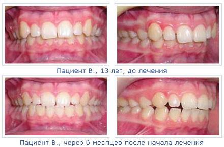 При задержке прорезывания зубов и, как следствие, возникновении угрозы разв