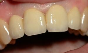 зубы после снятия виниров