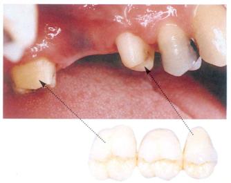 в зубах нервы фото