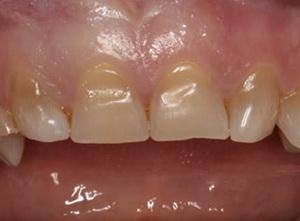 сколько держатся виниры на зубах отзывы