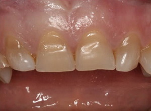 Teeth Whitening Crest Strips – Купить Teeth Whitening