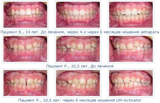 При необходимости, лечение дистального прикуса с применением LM-Activator м
