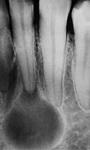 радикулярная киста зуба