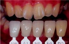 Врача и зубного техника