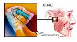 Суставная шины tmj при внчс повреждение ротаторной манжеты плечевого сустава мкб