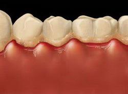 болят зубы запах изо рта