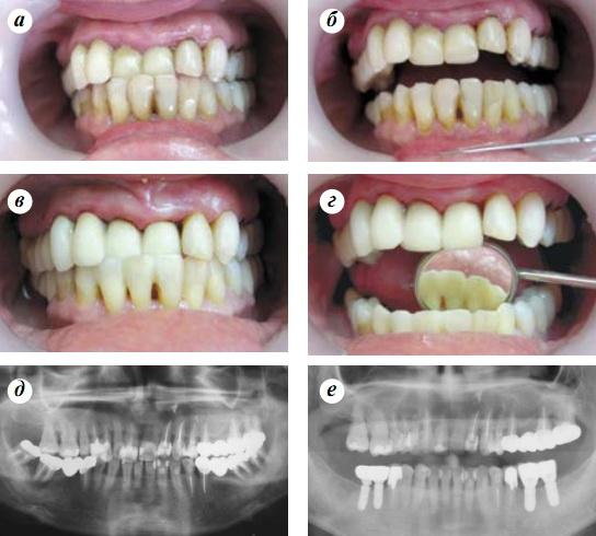 пародонтоз фото до и после лечения