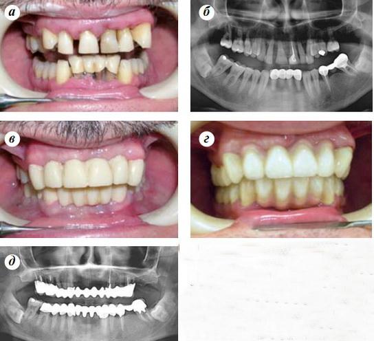 пародонтит фото до и после лечения