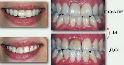 реставрация зубов керамическими винирами