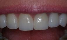 реставрации зубов виниры
