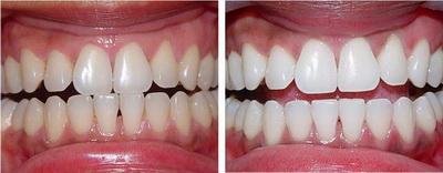 Результат лазерного отбеливания зубов