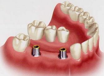 Несъемный протез для зубов
