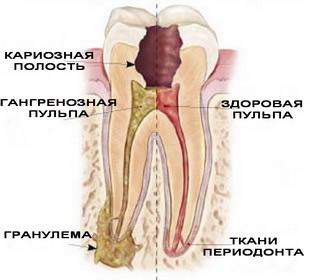 лечении периодонтита