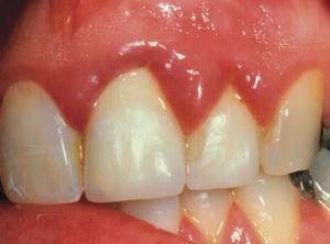 Что делать если болит десна после зубов