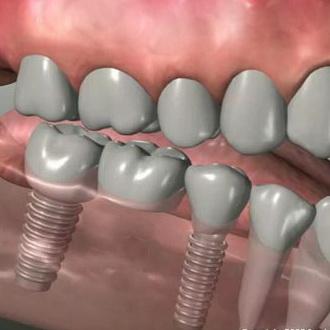 Импланты зубов: отзывы, преимущества, цены