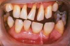 зубной камень запах изо рта