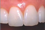 реставрация зубов вМоскве