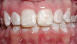 Отбеливание зубов amazing white особенности процедуры