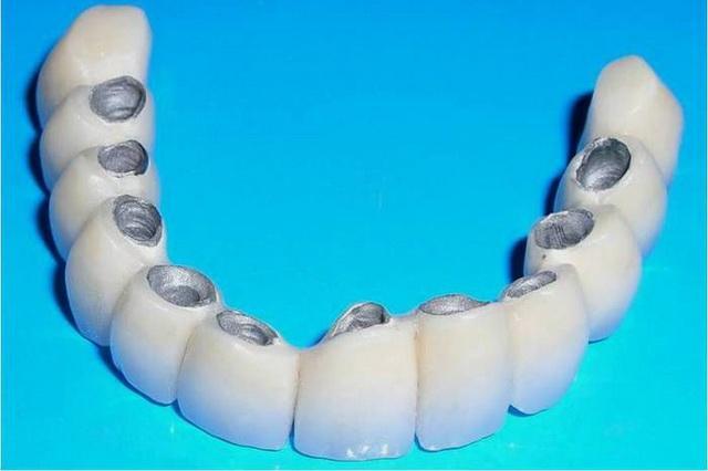 Керамическое протезирование зубов