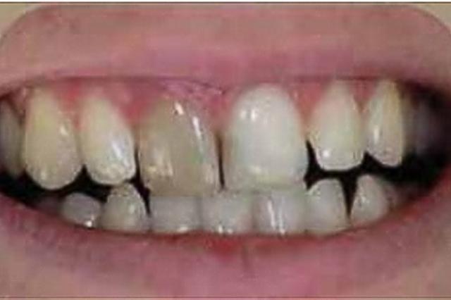 Внутриканальное отбеливание зубов (эндоотбеливание), процедура