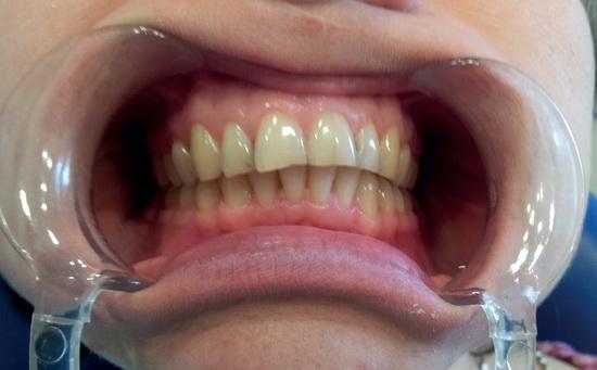 Изображение - Дисплазия челюстного сустава a0521-1