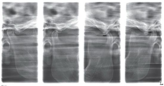 Изображение - Дисплазия челюстного сустава a0521-2