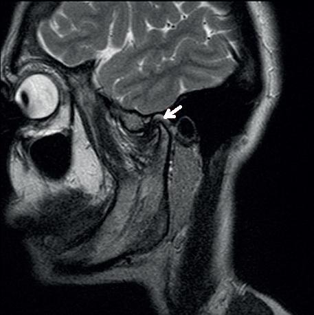 Изображение - Дисплазия челюстного сустава a0521-3a
