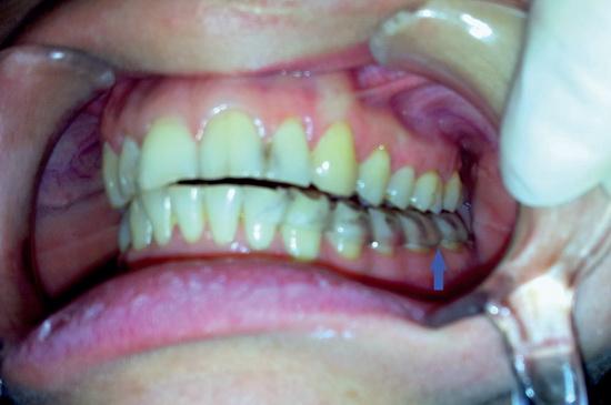 Изображение - Дисплазия челюстного сустава a0521-5