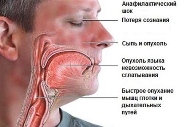 При развитии у больного анафилактического шока необходимо