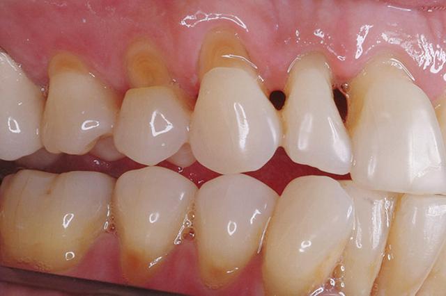 Кариес у основания зуба
