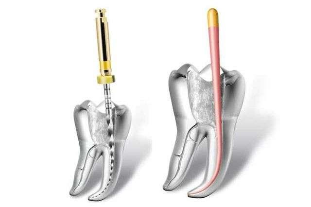 Лечение пульпита переднего зуба современные методы