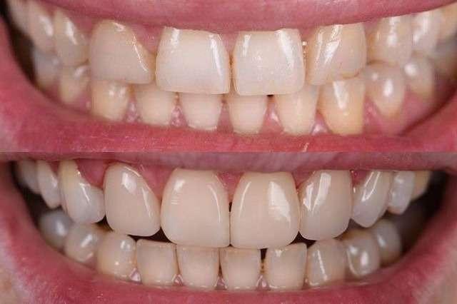 Реставрация зубов: виды, методы и материалы, цены в Москве и этапы процедуры восстановления зубов