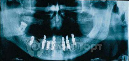 Ортопантомограмма после операции