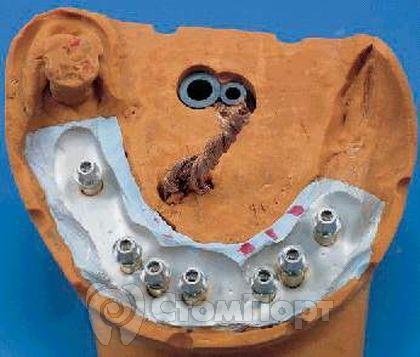Аналоги имплантатов вкручены в модельные гильзы