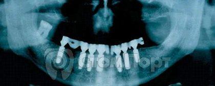 Ортопантомограмма также показывает точную посадку мезоструктуры
