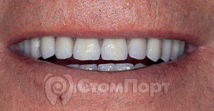 Лицевой вид в полости рта пациента нижнего мостовидного протеза с опорой на имплантаты