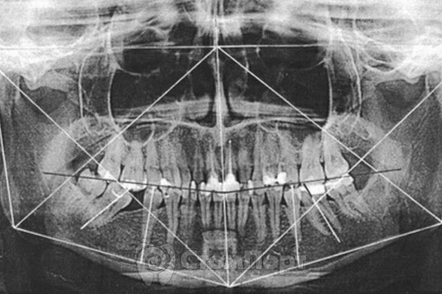 Компьютерная ортопантомография