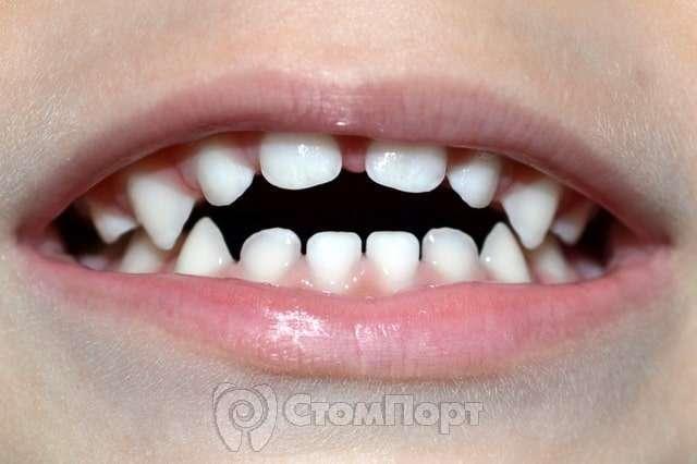 Аномалии развития зубов