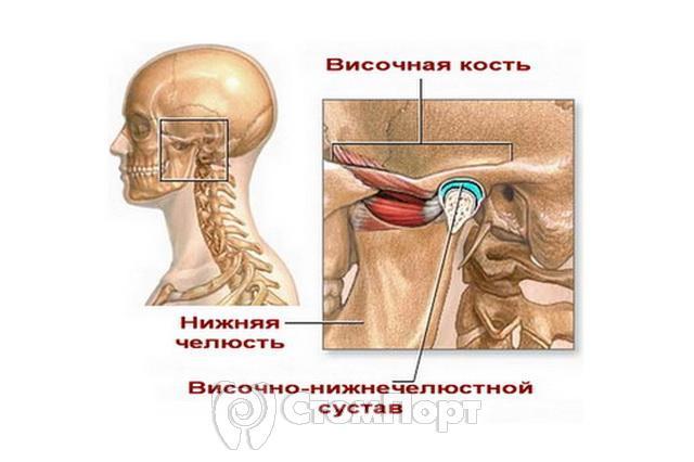 хронический артрит височно нижнечелюстного сустава что