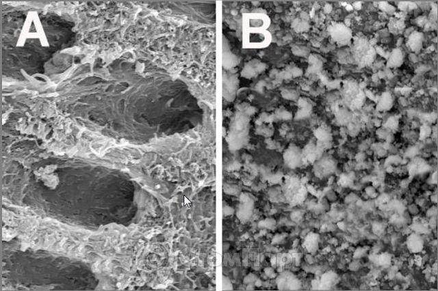 Биоактивное стекло восстанавливает дентин