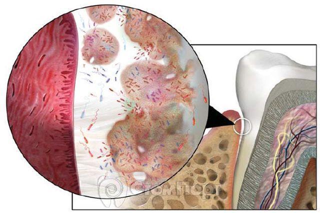 Биопленка: новый взгляд на бляшку