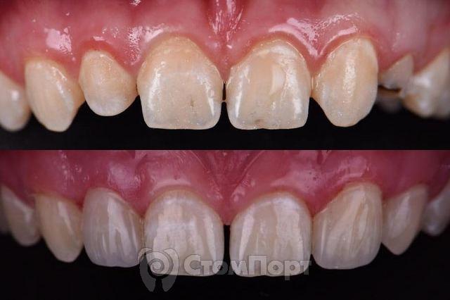 Изменение формы двух зубов без препарирования