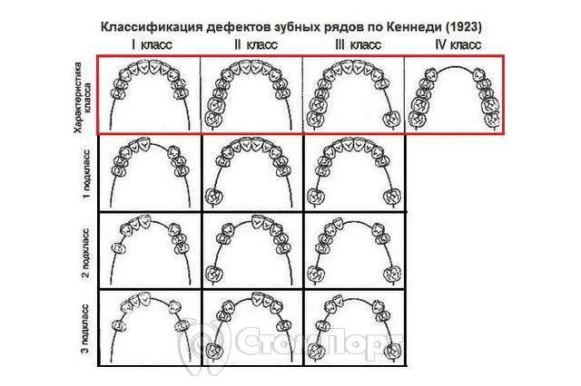 Дефекты зубных рядов по Кеннеди
