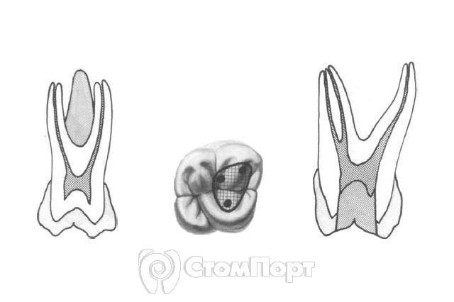 Морфология зубов верхней челюсти