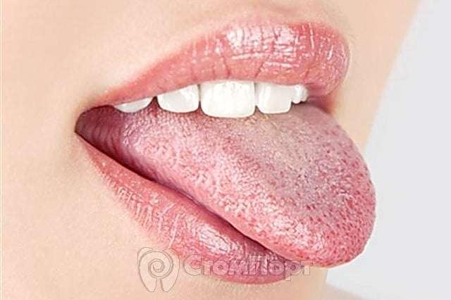 налет на языке при аллергии