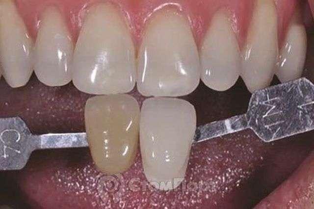 Принципы отбеливания зубов