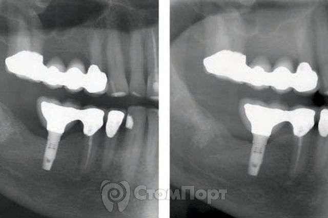 Объединение зубов и имплантатов