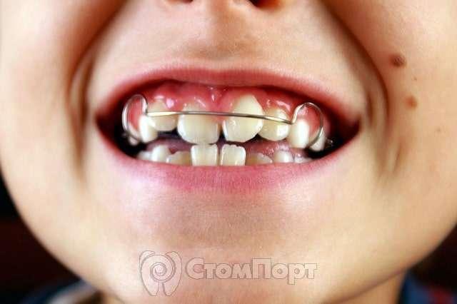 Ортодонтическая пластинка